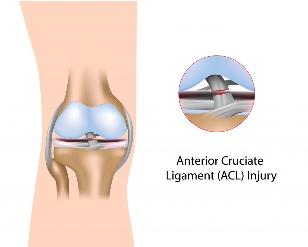 knee sugery